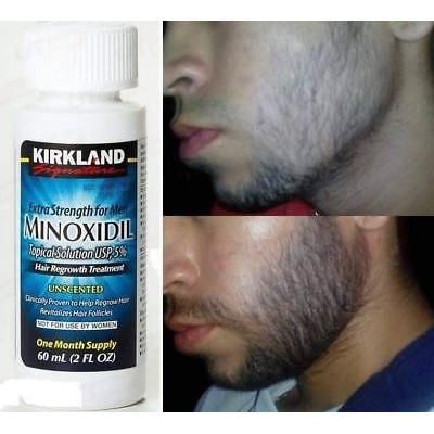 Kirkland minoxidil 5 USA Obat Oles Penumbuh Rambut kumis jambang brewok pria